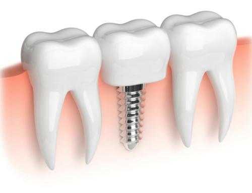 Understanding the Benefits of Dental Implants