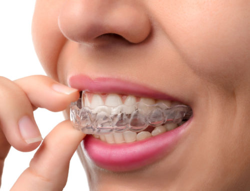 Here are 6 Reasons NOT to use Mail-Order Dental Aligner Services