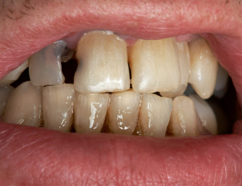Sore, Bleeding or Swollen Gums: A Guide to Good Periodontal Hygiene